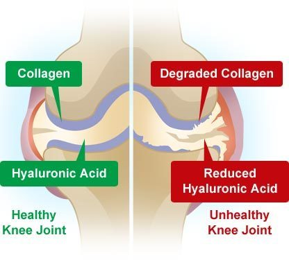Image result for collagen and joints