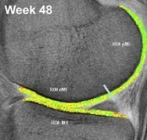 Collagen group week 48