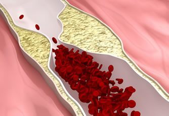 collagen and hardening arteries