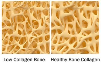 low collagen bone vs healthy