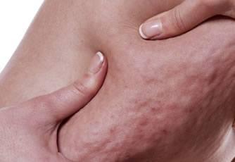 collagen for cellulite