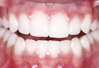 collagen for teeth and gums