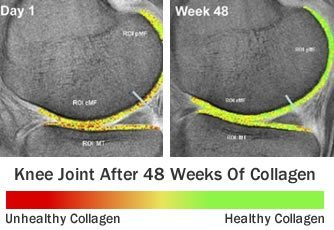 knee joint before and after with collagen