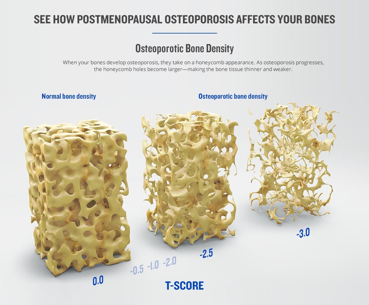Natural Way Treat Osteoporosis